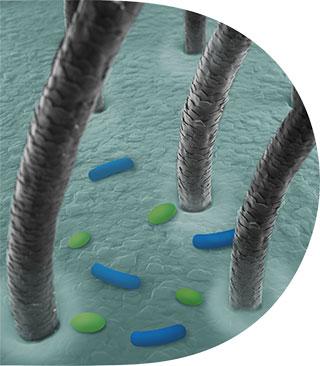 Ανισορροπία μικροβιώματος