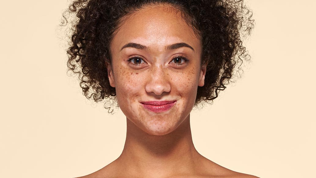 v_before-vitiligo_v2.jpg