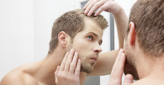 Τριχόπτωση Ανδρών: 4 συμβουλές κατά της απώλειας μαλλιών